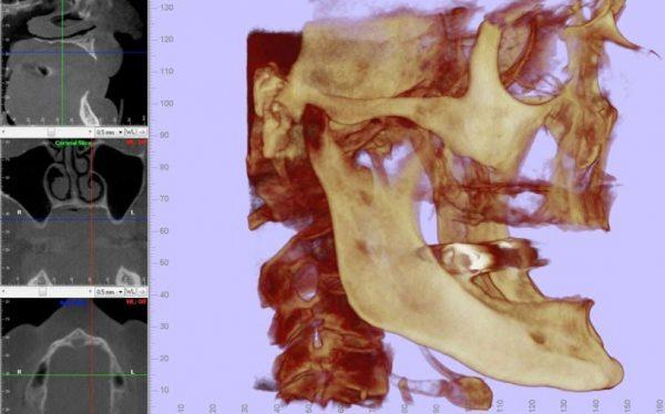 atrofia-maxilar-severa
